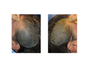 Bilateral Head Widening Skull Implants intraop Dr Barry Eppley Indianapolis