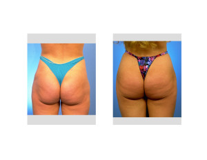 Brazilian Butt Lift Dr Barry Eppley Indianapolis