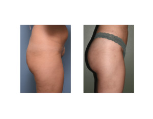 Brazilian Butt Lifts results side view Dr Barry Eppley Indianaoplis