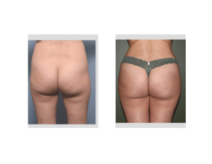 Brazilian Buttock Lifts result front view Dr Barry Eppley Indianapolis