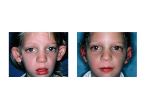 Early Otoplasty in Children Dr Barry Eppley Indianapolis