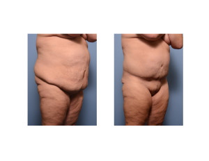 Extended Tummy Tuck result oblique view Dr Barry Eppley Indianapolis