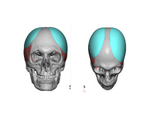 Head Widening Implants design Dr Barry Eppley Indianapolis