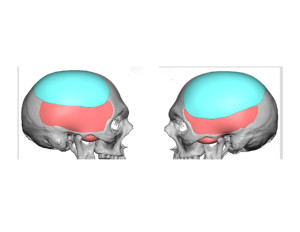 Head Widening Implants design side view Dr Barry Eppley Indianapolis