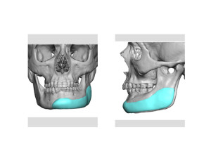 Jaw Asymmetry Implant Design Dr Barry Eppley Indianapolis