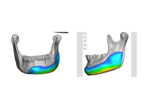 Jaw Asymmetry Implant Thickness Dr Barry Eppley Indianapolis