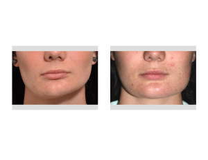Jaw Asymmetry Surgery results front view Dr Barry Eppley Indianapolis