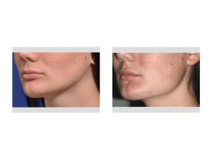 Jaw Asymmetry Surgery results oblique view Dr Barryt Eppley Indianapolis