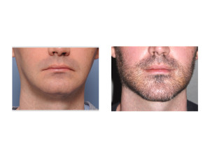 Jawline Surgery result front view Dr Barry Eppley Indianapolis