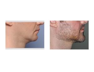 Jawline Surgery result side view Dr Barry Eppley Indianapolis