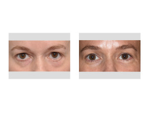 Left Lower Eyelid Reconstruction result front view Dr Barry Eppley Indianapolis