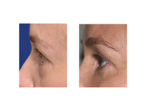 Left Lower Eyelid Reconstruction result side view Dr Barry Eppley Indianapolis