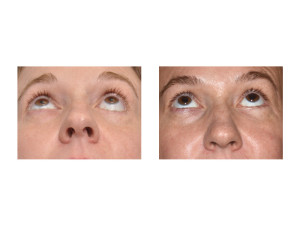 Left Lower Eyelid Reconstruction result submental view Dr Barry Eppley Indianapolis