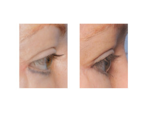 Lower Eyelid Ectropion Repair side view Dr Barry Eppley Indianapolis