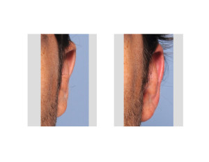 Otoplasty Reversal result left ear bDr Barry Eppley Indianapolis