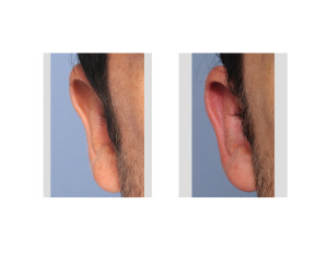 Otoplasty Reversal result right ear Dr Barry Eppley Indianapolis
