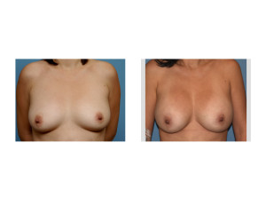 10 Year Silicone Breast Augmentation result front view Dr Barry Eppley Indianapolis