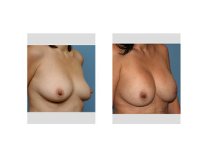 10 Year Silicone Breast Augmentation result oblique view Dr Barry Eppley Indianapolis