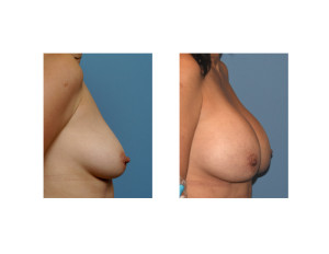 10 Year Silicone Breast Augmentation result side view Dr Barry Eppley Indianapolis