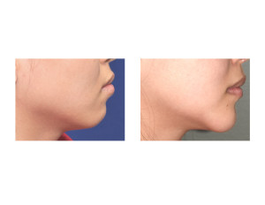 Asian Chin Reshaping result side view Dr Barry Eppley Indianapolis