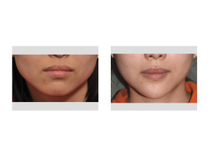 Asian Female Jawline Narrowing result Dr Barry Eppley Indianapolis