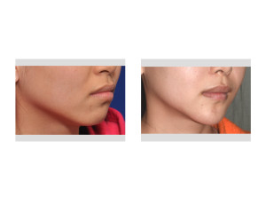 Asian Female Jawline Reshaping result oblique view Dr Barry Eppley Indianapolis