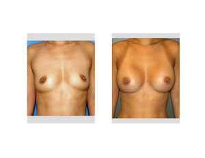 Breast Augmentation in Asians Dr Barry Eppley Indianapolis