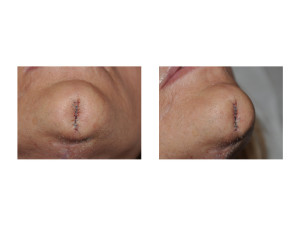 Chin Cleft Creation Surgery intraop Dr Barry Eppley Indianapolis