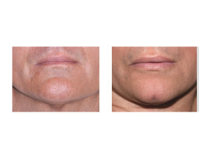 Chin Cleft Creation Surgery result front view Dr Barry Eppley Indianapolis