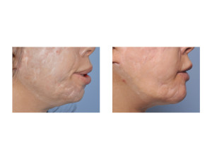 Custom Extended Chin Implant result side view Dr Barry Eppley Indianapolis