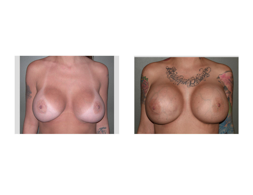 breast enlargement surgery in