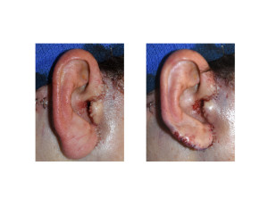 Facelift Earlobe Reduction result Dr Barry Eppley Indianapolis