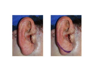 Faceliftv Earlobe Reduction marking Dr Barry Eppley Indianapolis