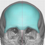 Forehead Implant Design Dr Barry Eppley Indianapolis