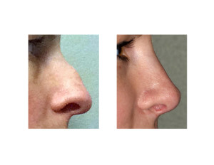 Hump Reduction Rhinoplasty result 3 side view Dr Barry Eppley Indianapolis