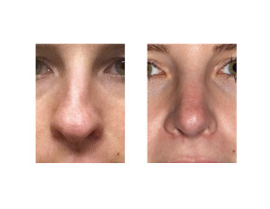 Hump Reduction Rhinoplasty result front view Dr Barry Eppley Indianapolis