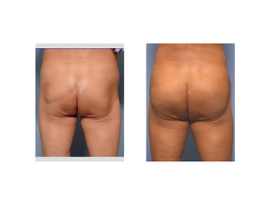 Kelly Buttock Implants result back view