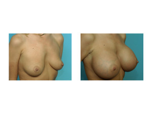 Large Breast Augmentation result oblique view Dr Barry Eppley Indianapolis