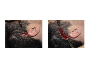 Limited Incision Posterior Temporal Reduction technique Dr Barry Eppley Indianapolis