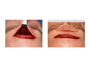 Male Direct Brow Bone Exposure and Bone Flap Removal intraop Dr Barry Eppley Indianapolis