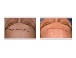 Male Direct Brow Bone Reduction Skin Closure Dr Barry Eppley Indianapolis
