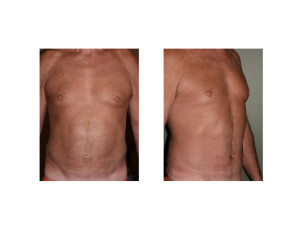 Middle Aged Male Abdominal Etching results Dr Barry Eppley Indianapolis