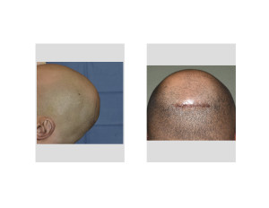 Minimal Incision Occipital Cranioplasty incision Dr Barry Eppleyh Indianaspolis
