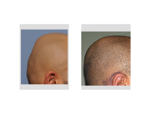 Minimal Incision Occipital Cranioplasty with PMMA result left side view Dr Barry Eppley Indianapolis
