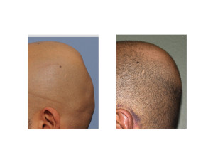 Minimal Incision Occipital Cranioplasty with PMMA result side view Dr Barry Eppley Indianapolis