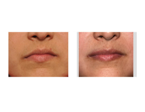 Mouth Asymmetry Surgery result Dr Barry Eppley Indianapolis