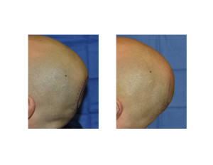 Occipital  Cranioplasty intraoperative result Dr Barry Eppley Indianapolis