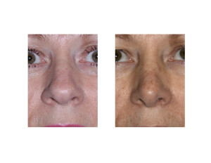 Overprojecting Nose Rhinoplasty result front view Dr Barry Eppley Indianapolis