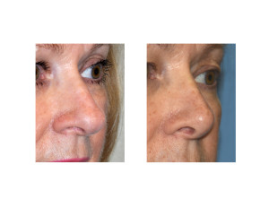 Overprojecting Nose Rhinoplasty result oblique view Dr Barry Eppley Indianapolis