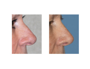 Overprojecting Nose Rhinoplasty result side view Dr Barry Eppley Indianapolis